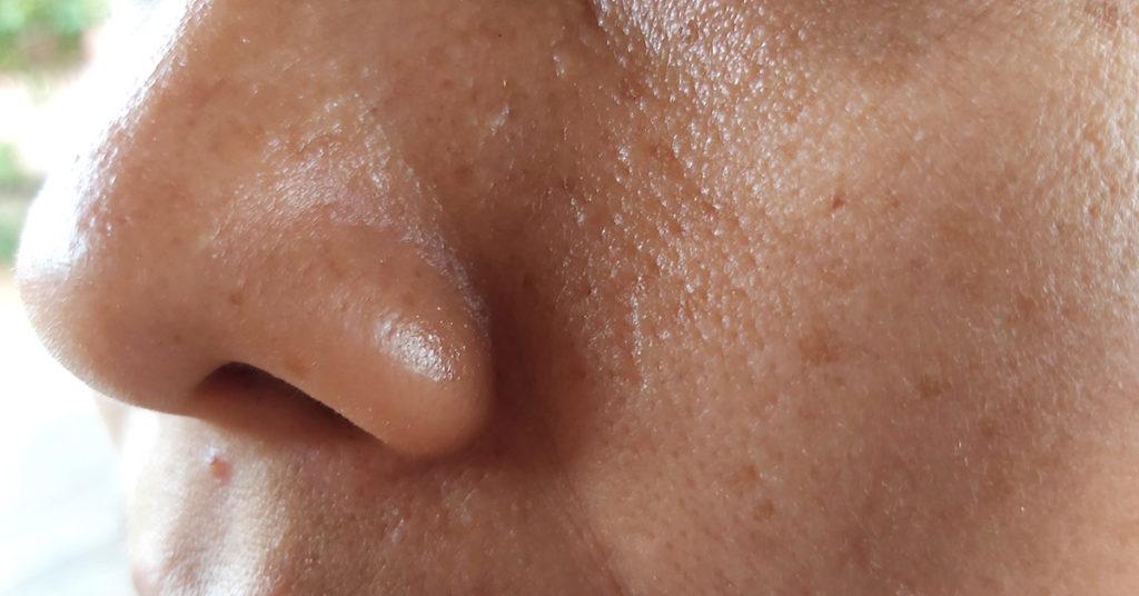 Imagen para explicar qué es la piel grasa y algunas de sus causas.